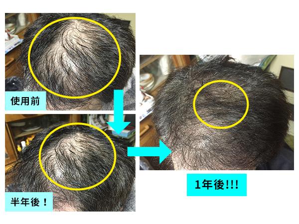 多立寶 多髮寶 生髮 養髮 健髮 育髮 掉髮 CSC 落髮