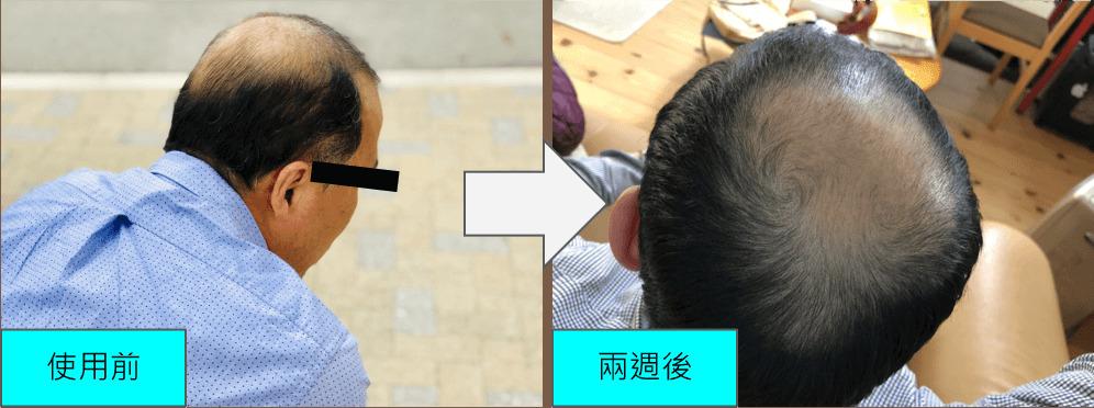 多立寶 東森 多髮寶 生髮 養髮 健髮 育髮 掉髮 CSC 落髮 一袋女王 東森財經
