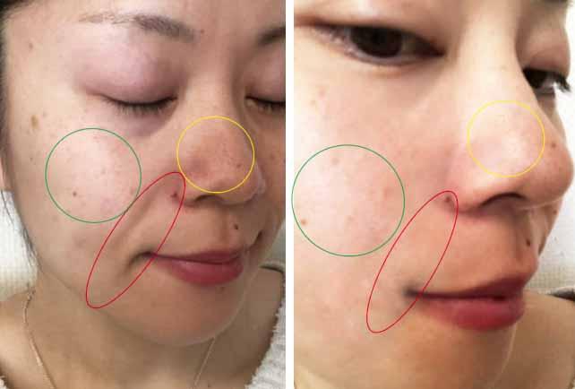 日本 藥妝推薦 抗皺 法令紋 淚溝 黑斑 暗沈 亮白 皺紋 細紋 動態紋 表情紋 超保濕 肉毒級 醫美 好吸收 抗皺聖品 2021